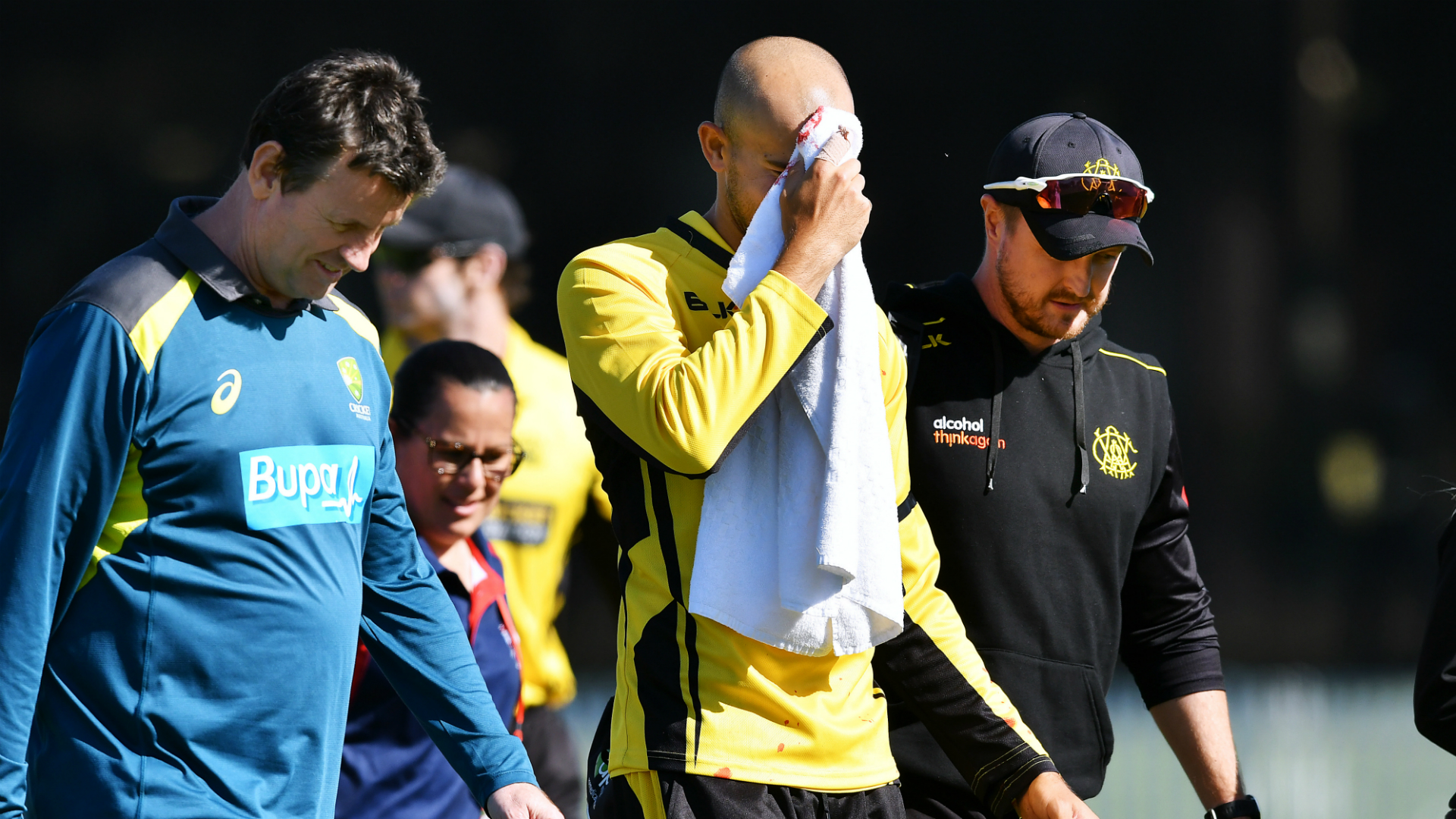 Ashton Agar needed medical attention after suffering a laceration to the bridge of his nose when dropping a catch off brother Wes.