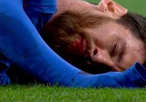 Não faltou rivalidade no grande clássico do futebol espanhol. Confira cada detalhe do encontro dos merengues e dos catalães no Bernabéu