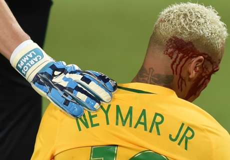 Bloodied Neymar 'needs maturity'