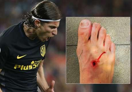 Así quedó el pie de Filipe Luis