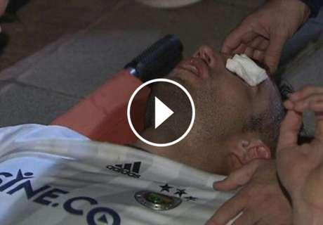 A horripilante lesão de Van Persie