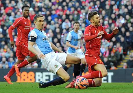 Previa FA Cup: Blackburn - Liverpool