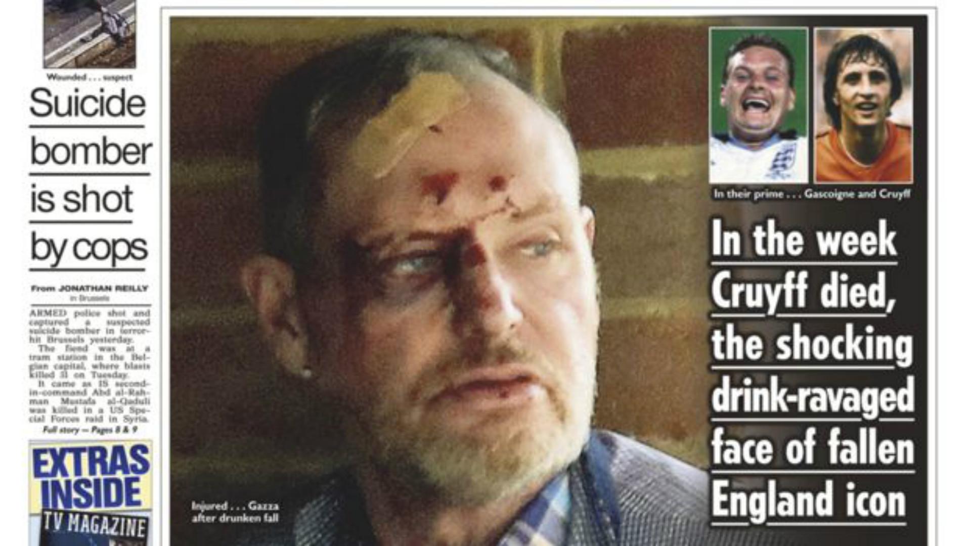 Paul Gascoigne Ubriaco: Cade e si Ferisce al Volto