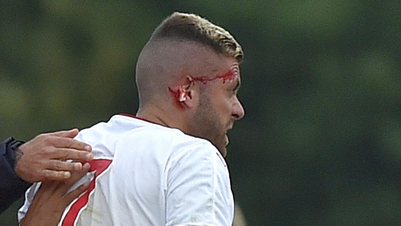 Infortunio choc per Menez: perde un pezzo di orecchio