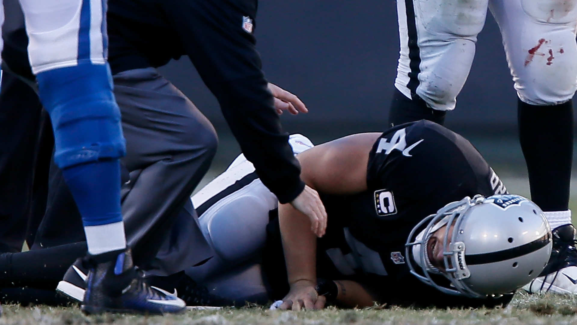 Derek Carr carted off, appears to mouth 'it's broke' grabbing right leg
