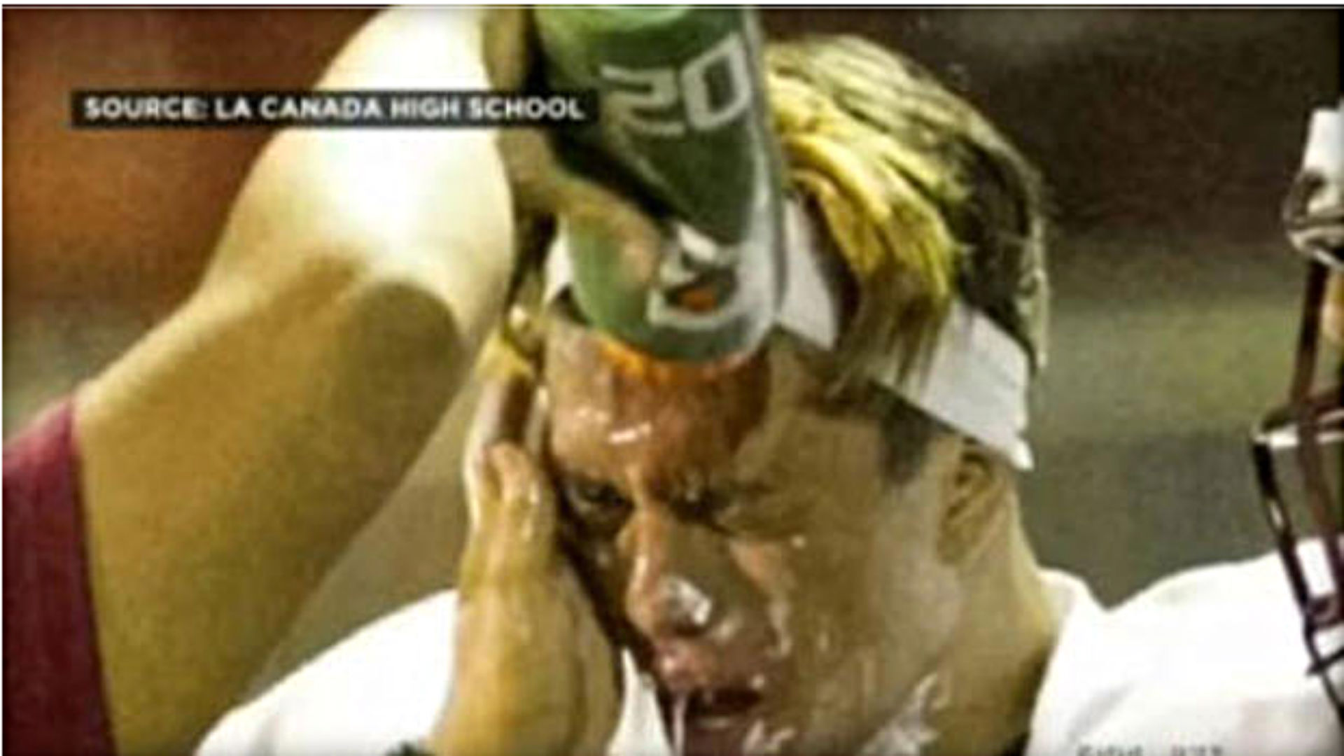 California high school player attacked