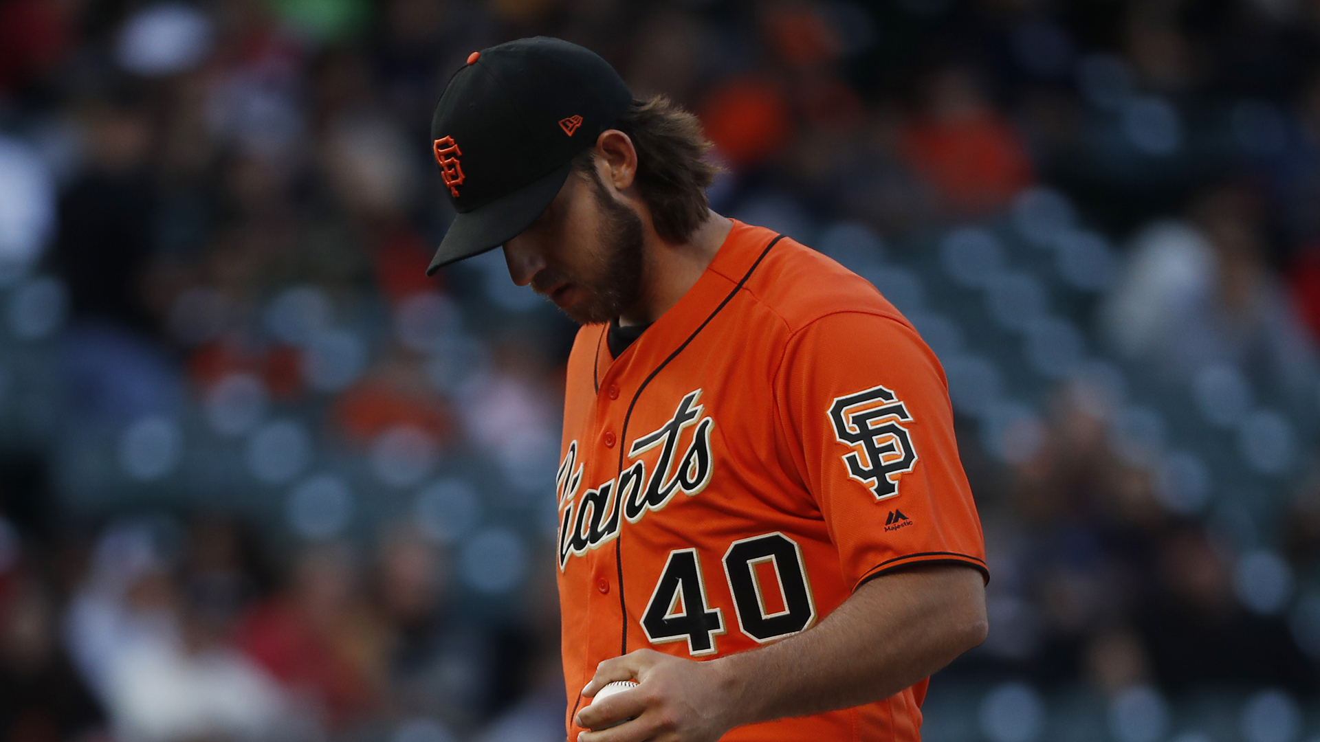 Bumgarner fractures pitching hand after being hit by line drive