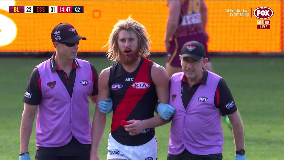 #dyson heppell hodge