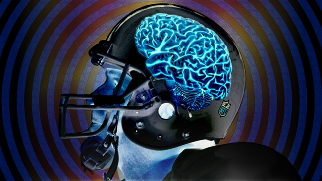Concussions-091815-AP-FTR.jpg