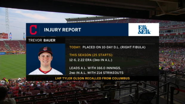 Bauer headed to DL