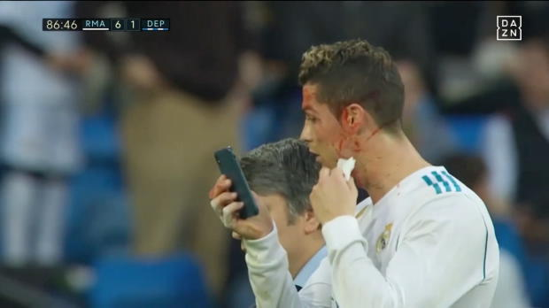 La Liga: Blutender Ronaldo mit Handy