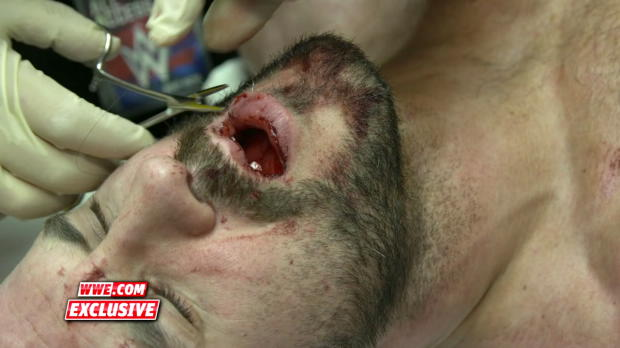 Cesaro receives stitches ahead of emergency dental work: WWE.com Exclusive, Sept. 24, 2017