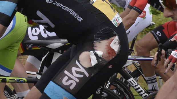 Defending champion Froome out of Tour de France