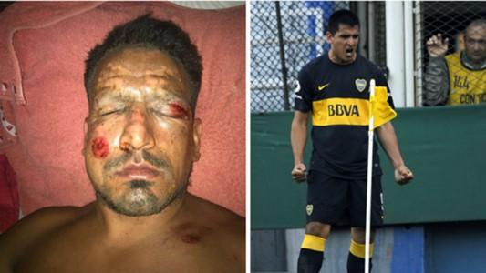 Firework injury striker