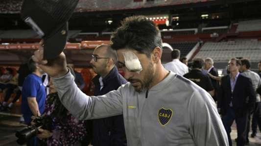 2018-11-25 Perez Boca Juniors Libertadores 2018