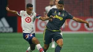 Khedira MLS- Juventus