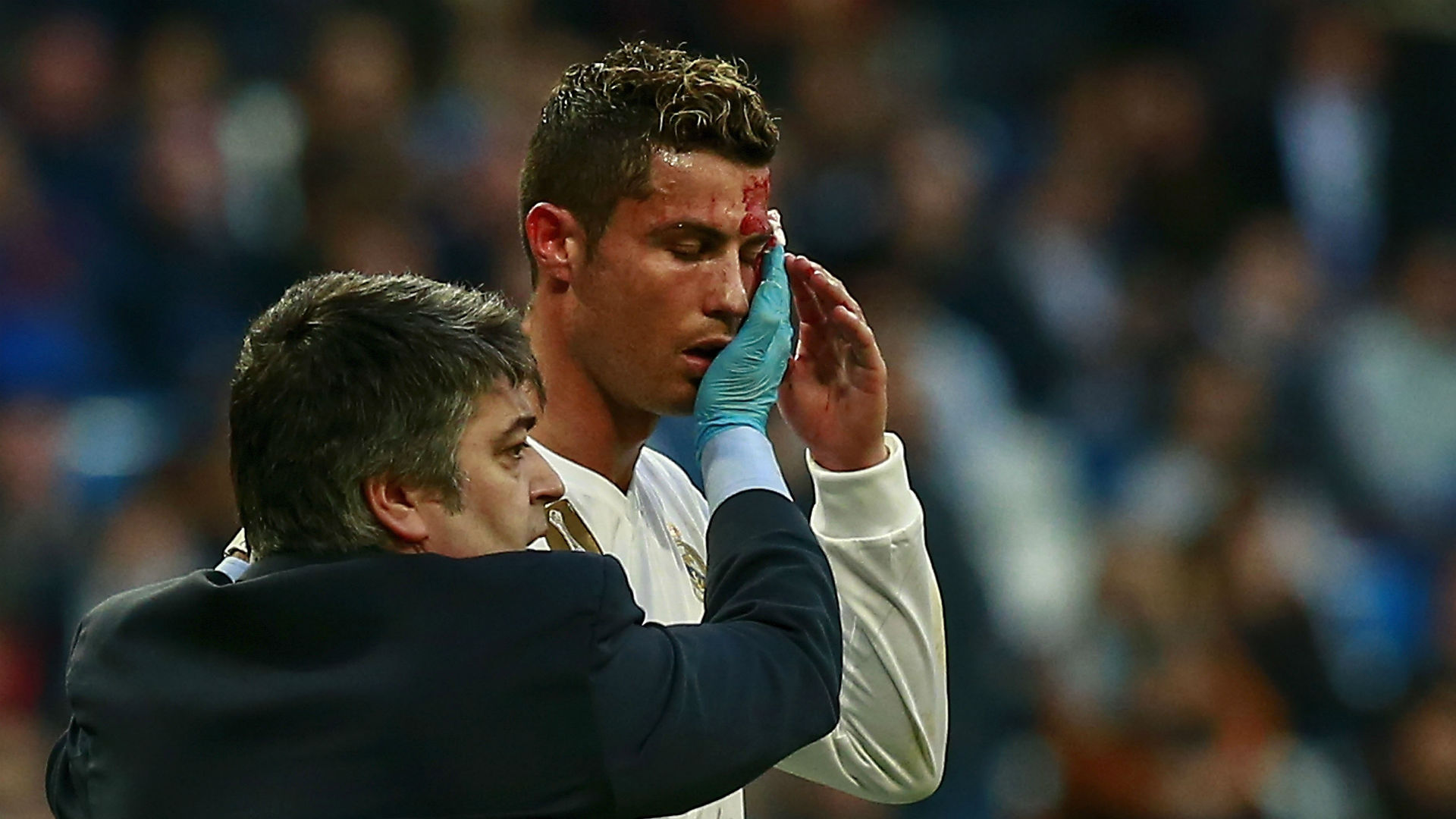 Cristiano Ronaldo Big Black Eye After Bloody Collision
