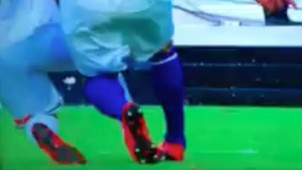 Gullit Peña lesión