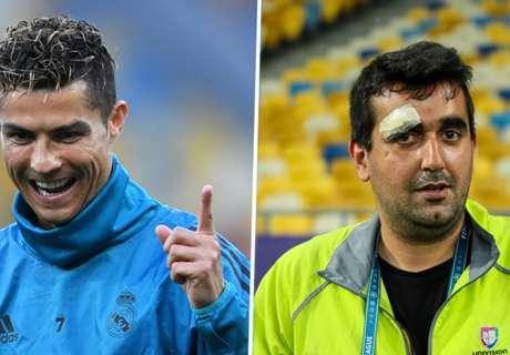 Cristiano Ronaldo splits cameraman's head open