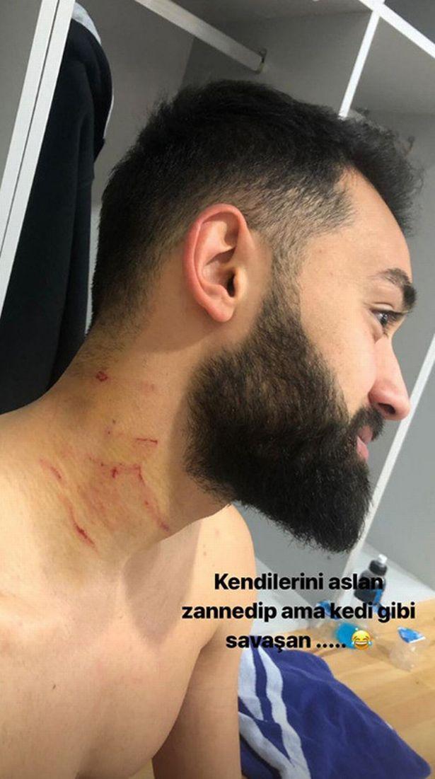 Ferhat Yazgan Amed SK Sakaryaspor razor