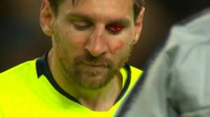 Messi Blut Auge