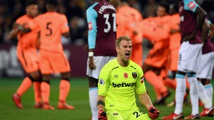 Liverpool Joe Hart