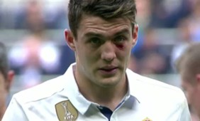BODY ONLY Kovacic pain